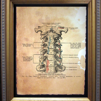 Cervical Vertebrae Diagram Art Print - Vintage Anatomy Art Print- Vintage Art Print on Tea Stained Paper