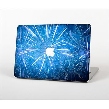 "The Blue Fireworks Skin Set for the Apple MacBook Pro 15"" with Retina Display"