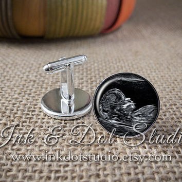 Custom Sonogram Cuff Links, Ultrasound Cufflinks, Cufflinks From Your Sonogram, Men's Cuff Links, Gift for Father To Be, Sonogram Cuff Links
