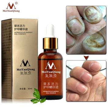 Fungal Toe Nail Treatment Feet Care Removal Anti Infection Gel