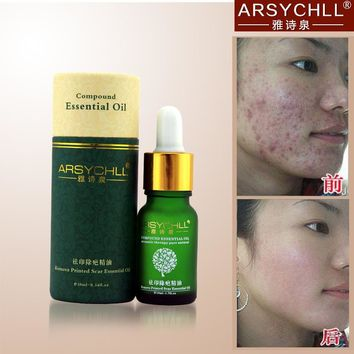 Face Care Acne Scar Removal Cream Acne Spots Skin Care Treatment Stretch Marks Whitening Remove Acne Face Essential Oil Care