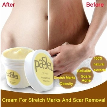 Cream Remove Scar Stretch Marks Care Postpartum Maternity Skin Body Repair (Size: 50 g, Color: Gold) = 1946330436
