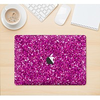 """The Bright Pink Glitter Skin Kit for the 12"""" Apple MacBook"""