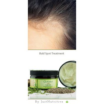 Bald Scalp Spot Cream / Bald Spot Treatment