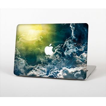 The Bright Sun Over Cloud-Magic Skin Set for the Apple MacBook Pro 15""