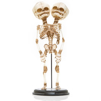 Conjoined Y-Baby Skeleton (Replica)