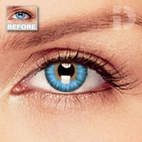 iD Lenses Diamond Blue Coloured Contacts