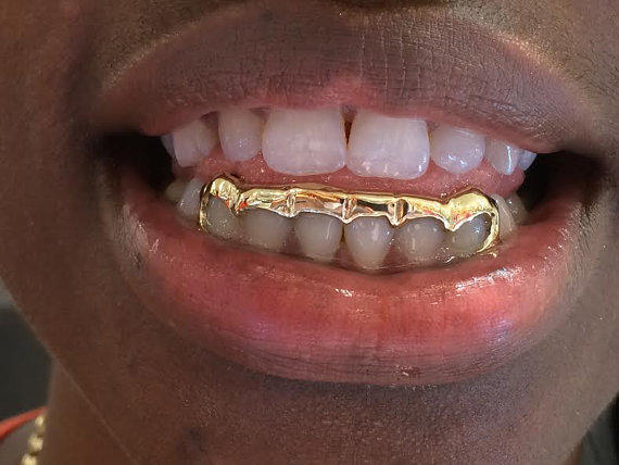 14k gold overlay removable gold teeth from myfamillystore on Etsy 0a9c20a12