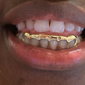 14k gold overlay removable gold teeth grillz caps including the mold kit and shipping/ 6 teeth /KA2