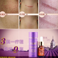 Powerful To Stretch Marks Maternity Essential Oil Skin Care Treatment Cream For Stretch Mark Remover Obesity Postpartum Repair = 1945763140