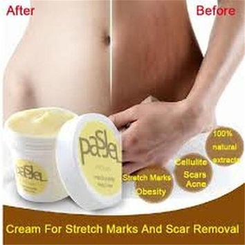 Cream Remove Scar Stretch Marks Care Postpartum Maternity Skin Body Repair (Size: One Size) [6332040388]