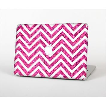 The Pink & White Sharp Glitter Print Chevron Skin Set for the Apple MacBook Pro 15""